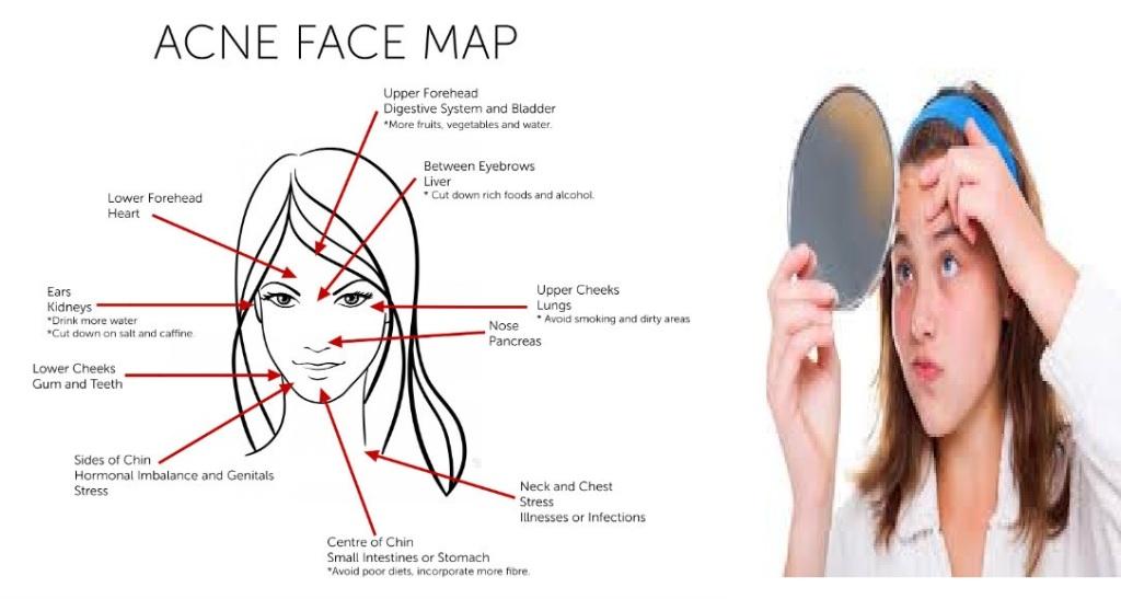 acne-face