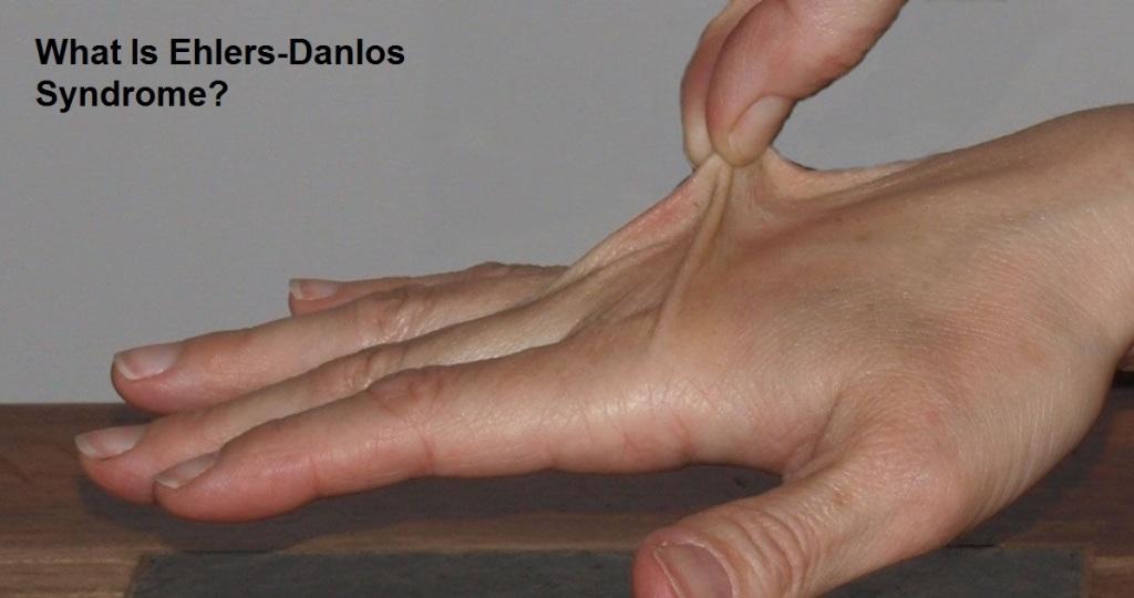 Ehlers-Danlos Skin stretch